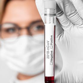 Nuevas medidas en Surveco contra el Coronavirus (23-03-2020) - Surveco